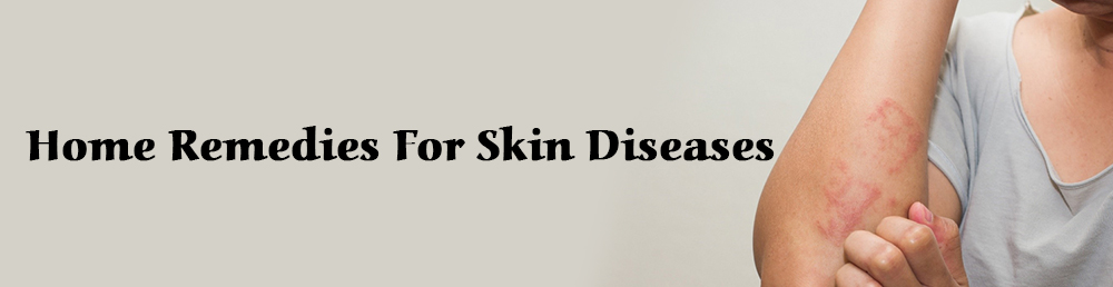Home Remedies For Skin Diseases